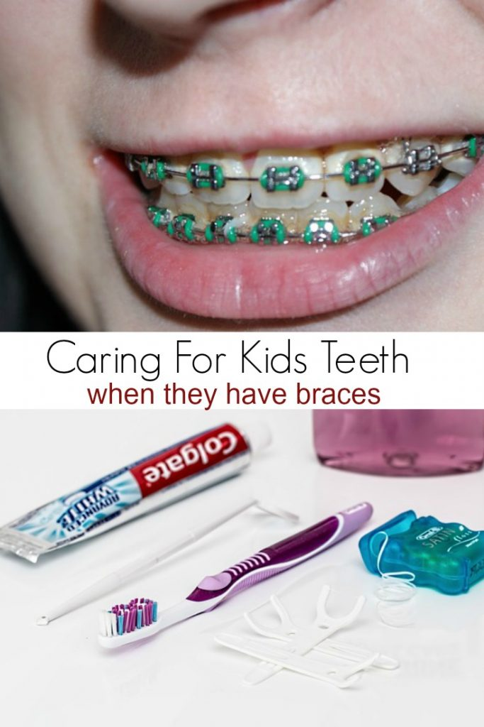 Caring for Kids Teeth when they have braces